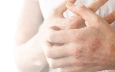 Fighting eczema? Here are 5 products that help